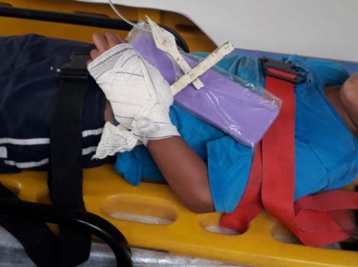 Criança se fere após cair em lança de portão em Redenção da Serra