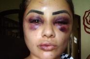 """""""Tentaram arrancar meus olhos"""", diz influencer digital de Jacareí após agressão"""